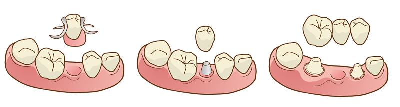 入れ歯とインプラント&ブリッジの違い