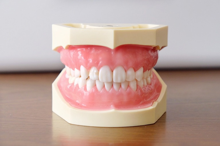 奥歯の高さが違うため、咬み合わせが合わない