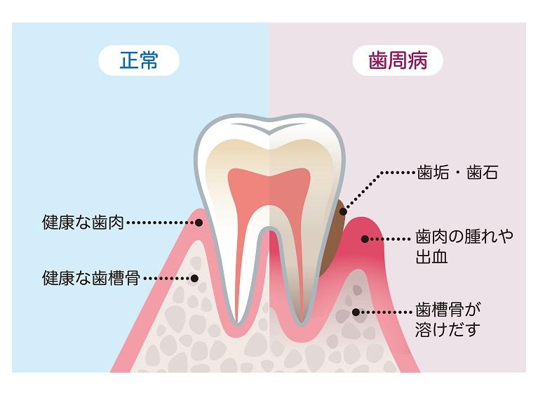 歯周病の危険性